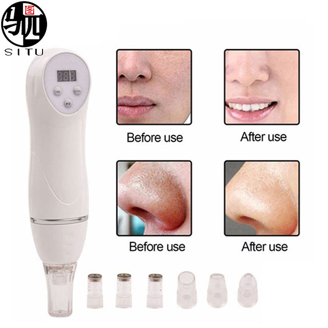 6 Tip Facial Skin Care Beauty Device Skin Diamond Dermabrasion Removal Scar Acne Pore Peeling Machine Massager Microdermabrasion
