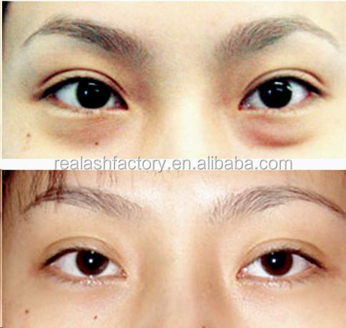Anti Wrinkle Whitening Cream,Real Plus Best Dark Circle Eye Cream ...