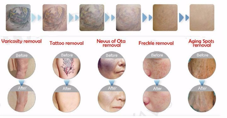 High power best fda approved laser tattoo removal/beauty machine picosecond fda approved tattoo removal lasers