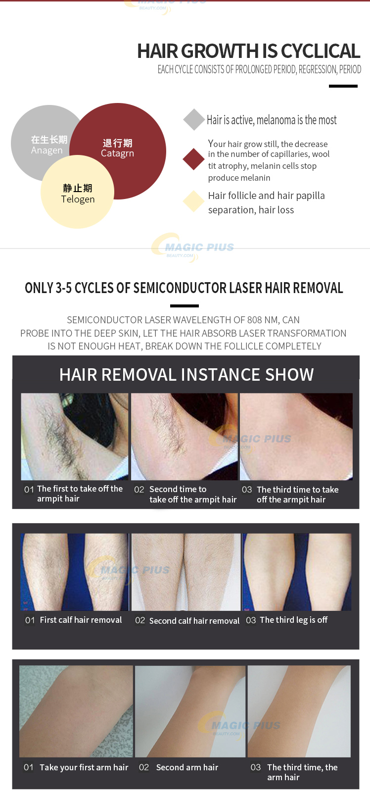 High Power Portable 808NM Diode Laser For Fast Hair Removal
