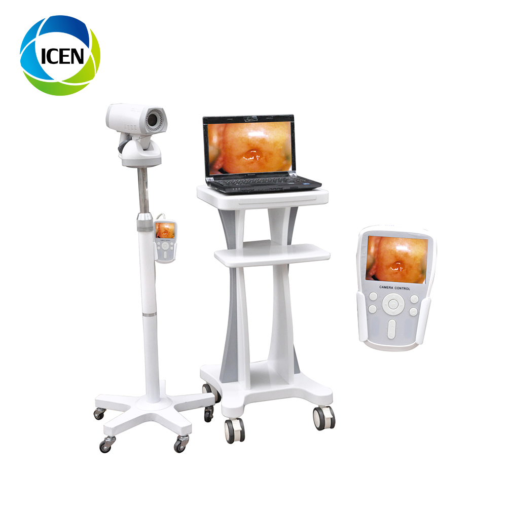 IN-G9800A  Medical Equipment Colposcope Digital Imaging System Specifications White LED Light Source For Colposcope