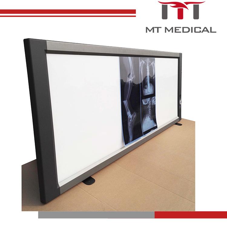 652bf937d Médica Negatoscopio Llevado Triple Dental Espectador De Película De ...