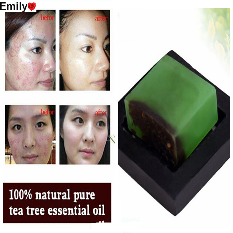 Powerful Acne Remover! 100% Pure Tea Tree Essential Oil ...