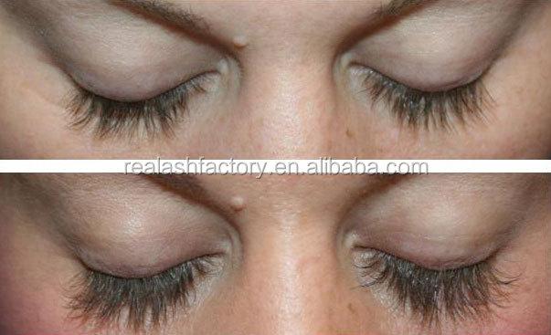 Most Popular World Famous Effective Feg Eyelash Enhancer No Side ...