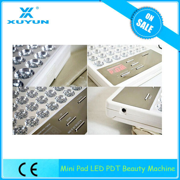 competitive price led light alleviate oily acne