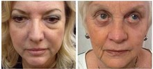 1x 2x 5x 10x 20x Boto x Instantly Ageless Argireline Face Lift Skin Care Product  Powerful Anti-wrinkle Anti-aging