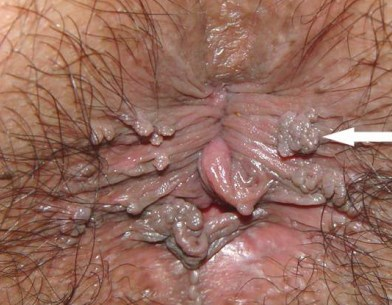 Text anal wart remover