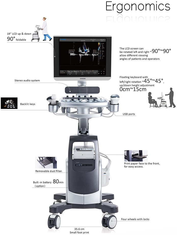 Chison QBit 7 Color Doppler Ultrasound Machine