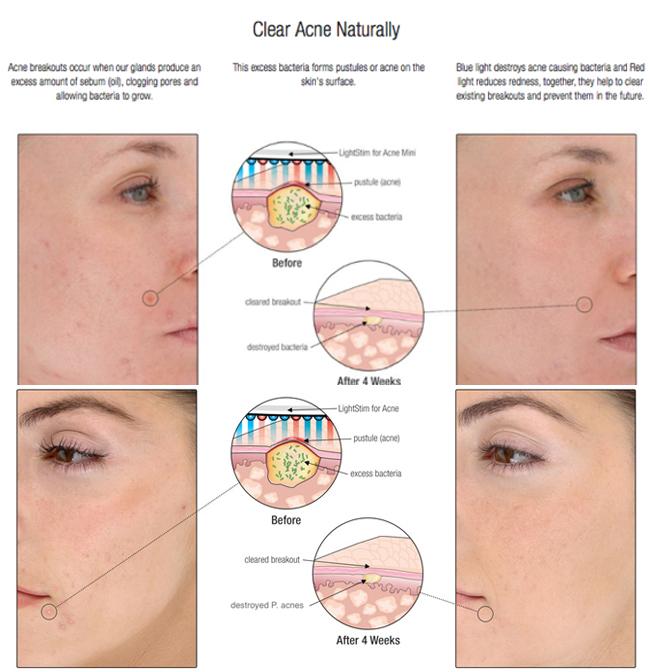 SA nouvelle thérapie de lumière rouge de machine faciale pliée a mené la lumière de thérapie pour le salon de beauté