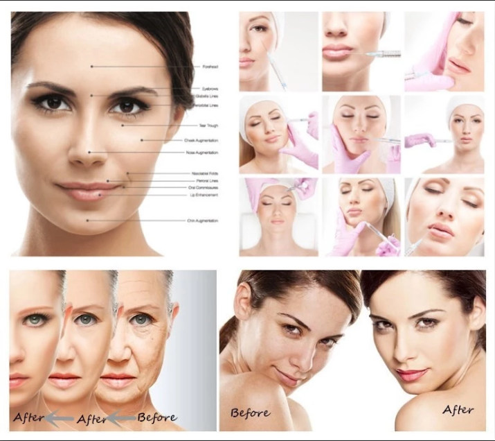 1ml Injection Hyaluronate Acid Dermal Filler + Hydrogel Breast Injection