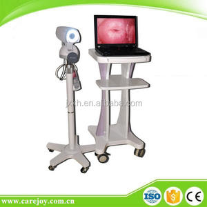 LED Gynaecology video colposcope price in China RCS-500