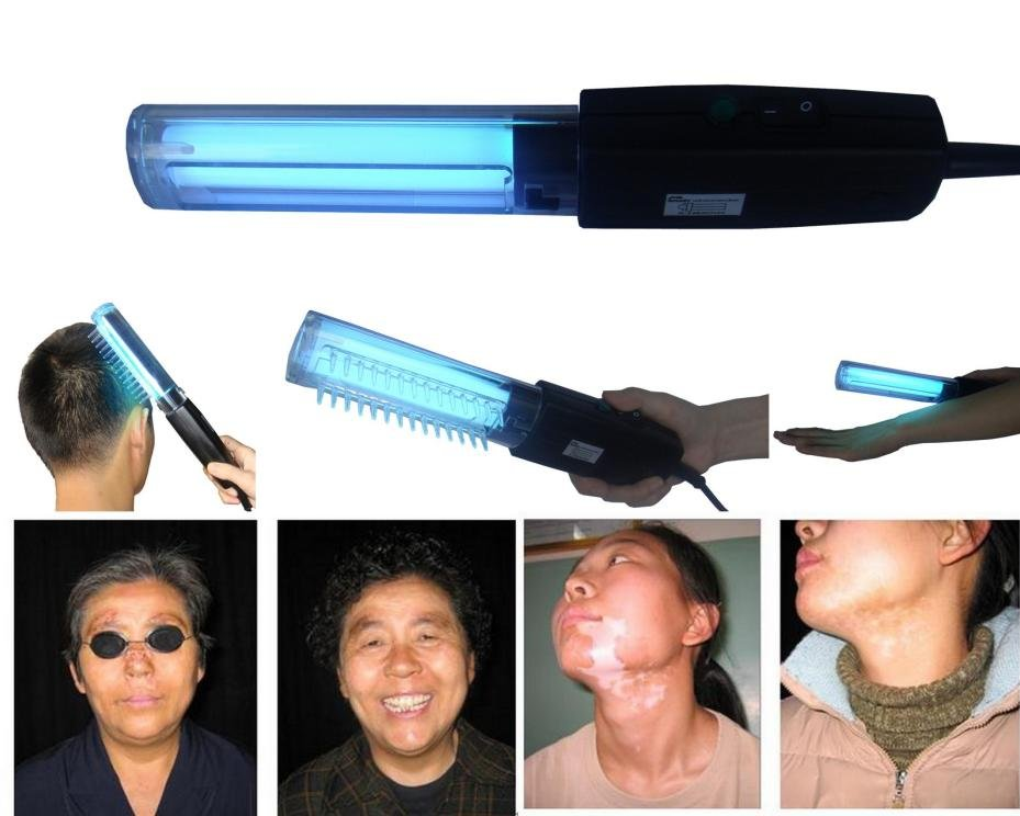 Uv Phototherapy Lamp-311nm Narrow Band Uvb For Vitiligo - Buy Uv ...
