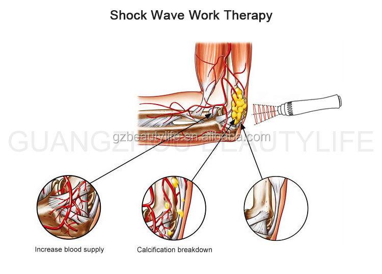Terapia de ondas de choque equipos para ed BL-SW8