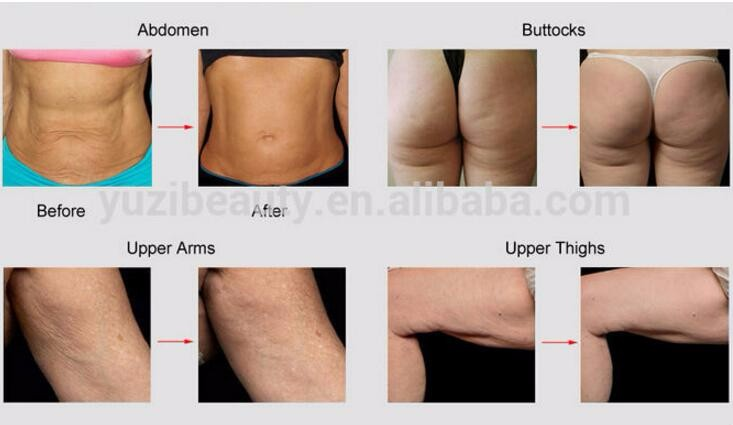 Kim 8 Slimming System 5 In 1 40khz Ultrasonic Liposuction