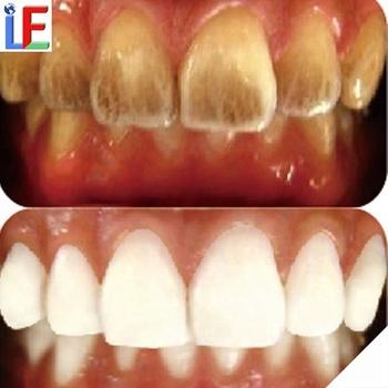 Best Teeth Whitening Effect Peroxide Free Teeth Whitening Strips