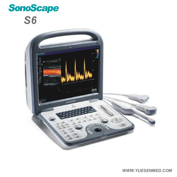 SonoScape S6 15 inch LCD monitor 3d/4d color doppler ultrasound system