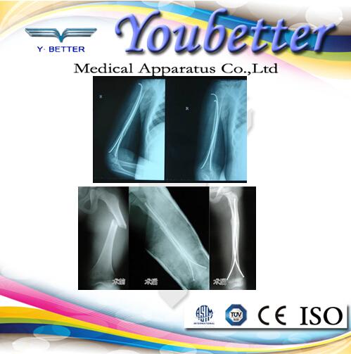 Elastic Nail Instrument Set,Youbetter Medical Apparatus Orthopedic ...