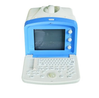 Siemens Digital Ultrasound&Cheap Price Digital Portable Ultrasound Scanner