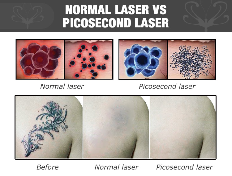 New arrival! laser picosecond / laser tattoo removal machine for sale