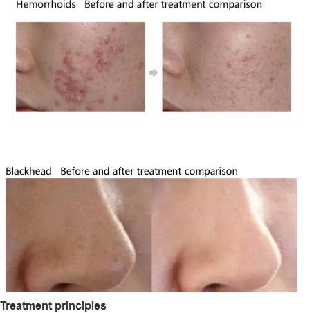 Skin Rejuvenation Peeling Facail Water Dermabrasion 5 in 1 Facial Machine TM-XQP