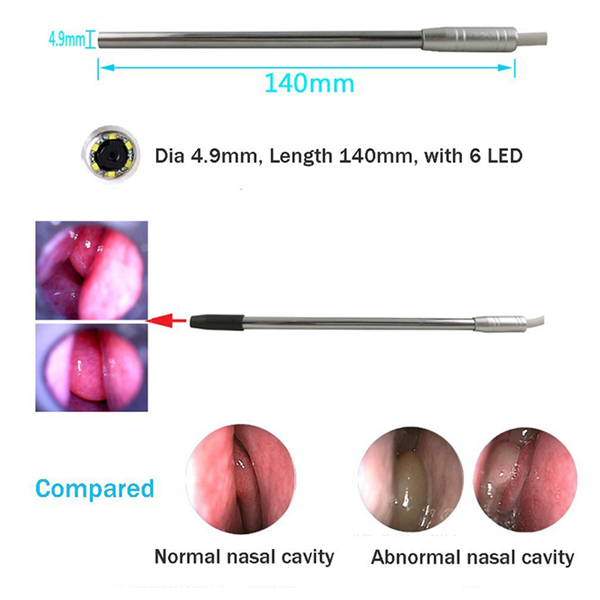 Medical USB Endoscope 4.9mm Lens for Ear Nose for OTG Android Phone PC Borescope Inspection Otoscope Endoscope Camera
