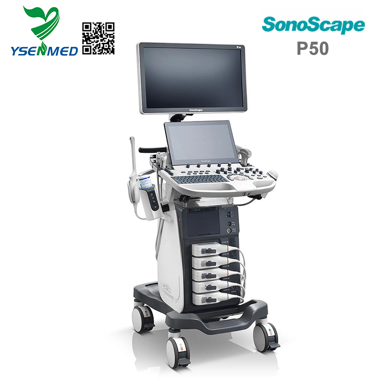 sonoscape 4d portable ultrasound mindray with trolley option built-in battery