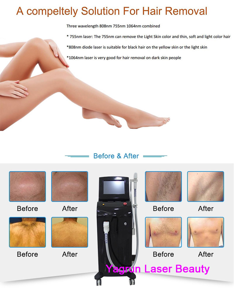 Yagrun High Power Soprano Ice Platinum Alma Laser Hair Removal