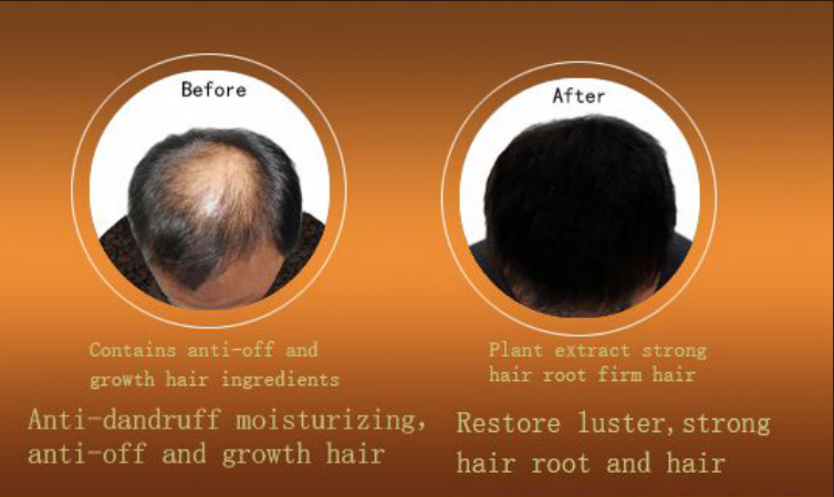 vojo Herbal Plants Prevent Hair Loss Anti Hair Loss Shampoo Best Shampoo Prevent Hair Loss