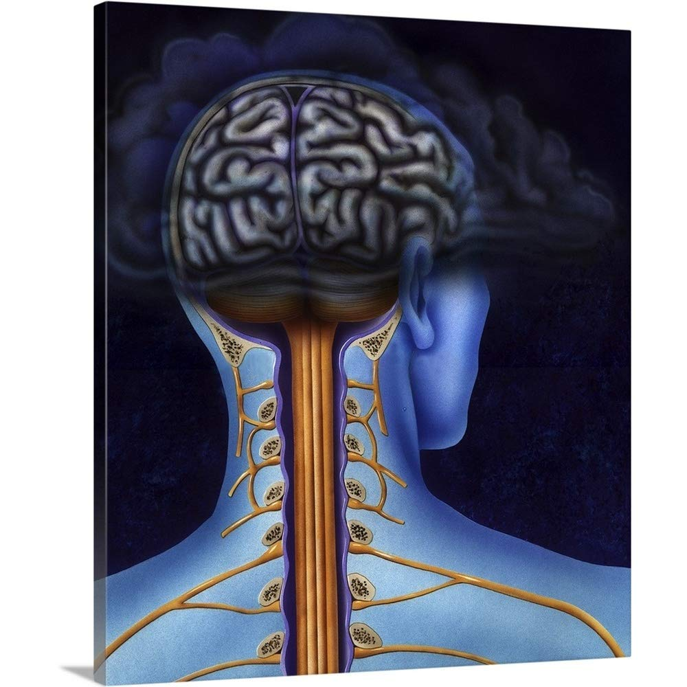 "Gallery-Wrapped Canvas Entitled Back of Brain and Spinal Cord with Head in Dark Cloud indicating Depression by TriFocal Communications 27""x30"""