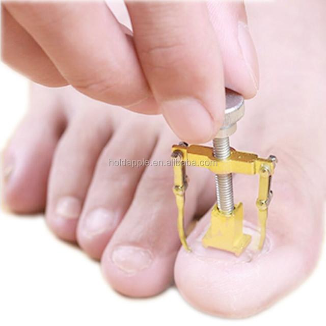 Buy Cheap China ingrown toe nail Products, Find China ingrown toe ...
