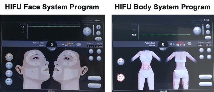 HIFU Machine Cost.jpg