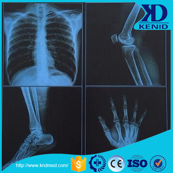 dry x-ray film,CT/MRI/DR/CR/DSA film,medical x-ray film agfa,fuji x-ray film