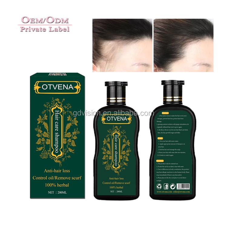 Most sold hair regrowth product anti-thinning anti hair loss shampoo