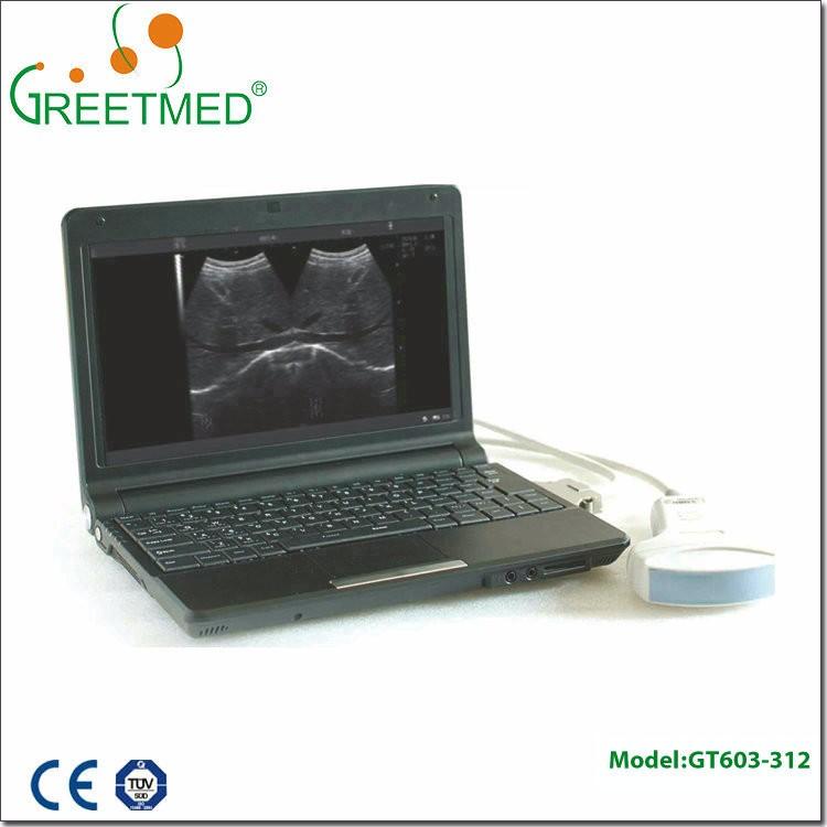 Ce Fda Approval Medical Pregnancy Test Laptop Ultrasound ...