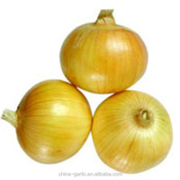 2014 New Season!!! China Different Packages Onion