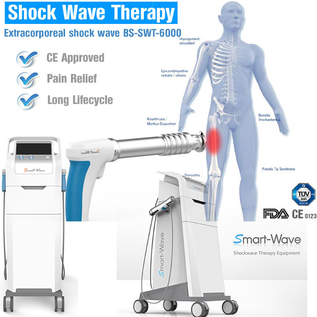Extracorporal shock wave therapie medische apparatuur/pijn machine/pijn behandelen shockwave apparatuur BS-SWT6000