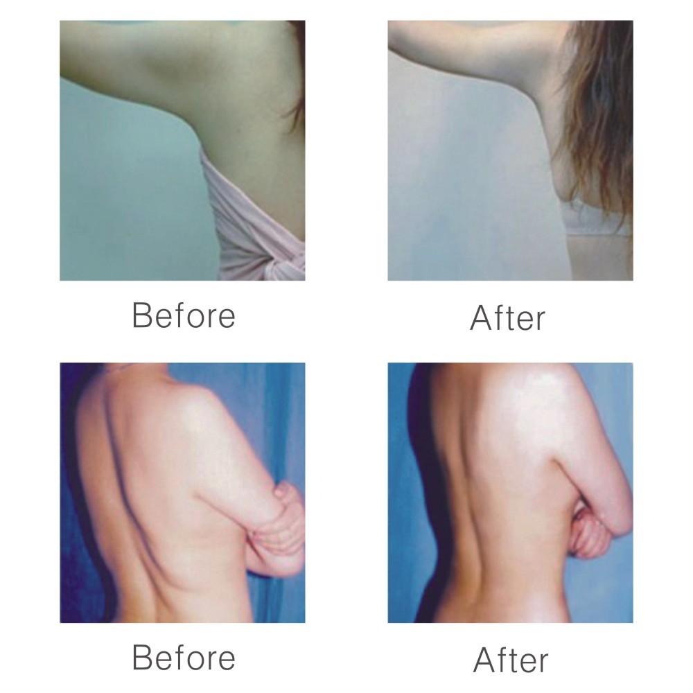 L carnitina inyectada antes y despues