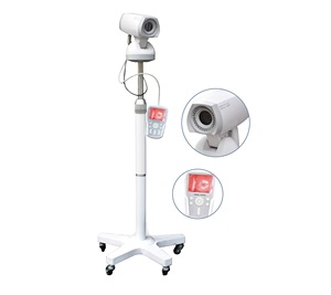 LED Video Colposcope with Tripod