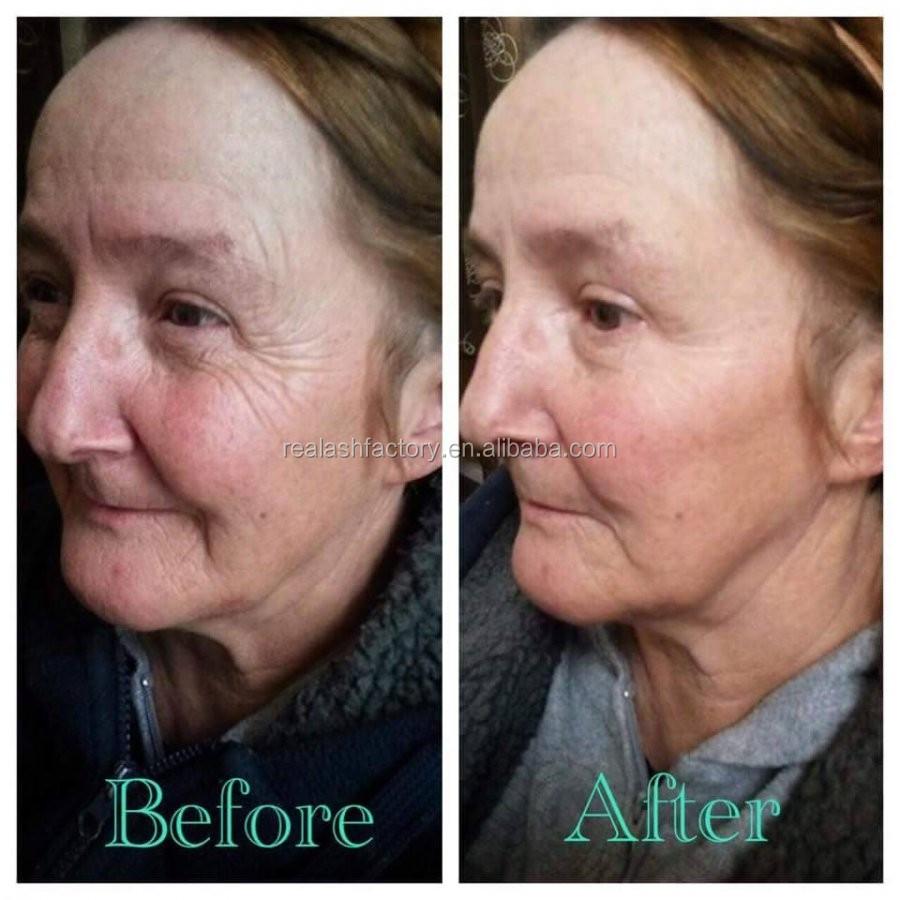 natural face tightening cream