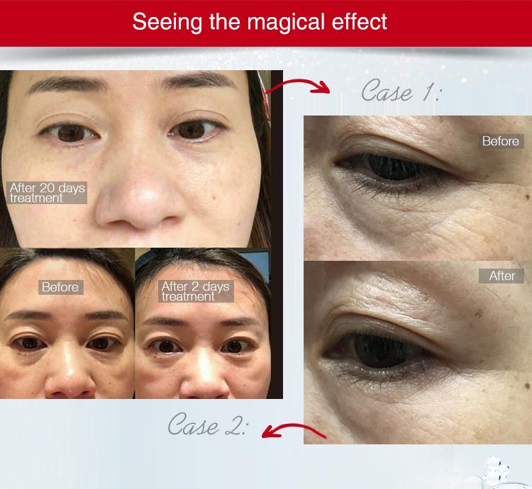 Masque pour les yeux Anti-âge patchs hydrogel, élimination des rides oeil