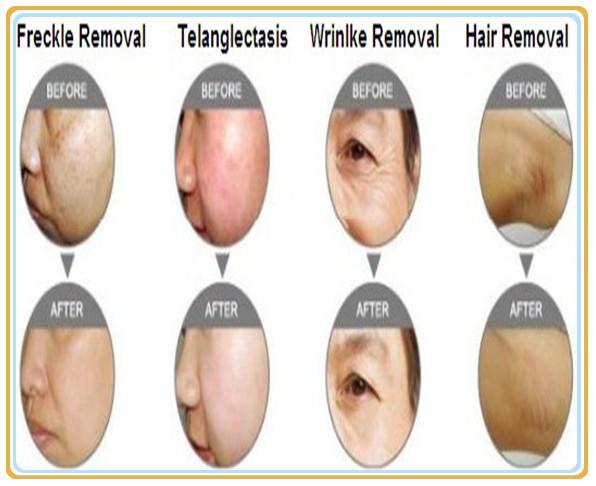 Laser Hair Removal Penis 117