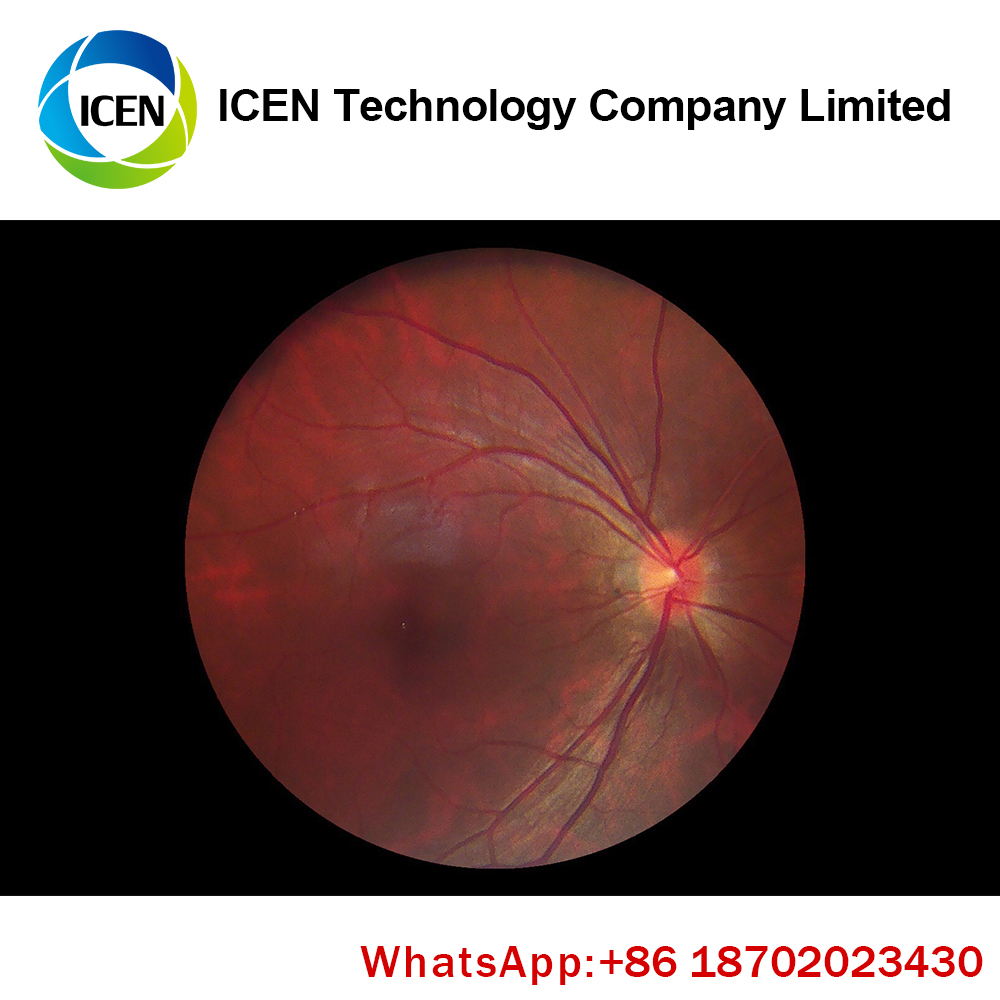 IN-V042  CE ISO approved HFC fundus camera handheld fundus camera non-mydriatic fundus camera