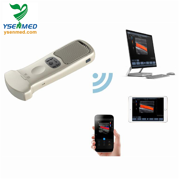 YSB363 New design WIFI connected to android or window palm multi-language wireless color doppler ultrasound system for sale