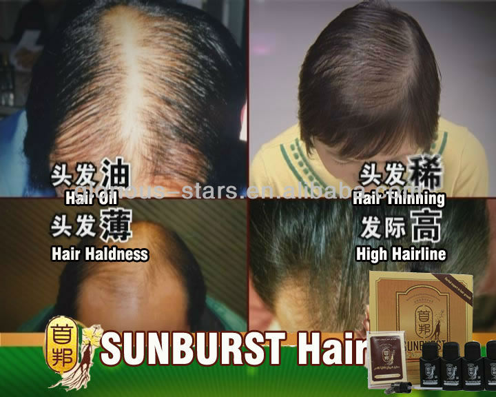 natural hair loss tonic ginseng products as seen on tv Sunburst Hair Growth Nourishing Liquid product