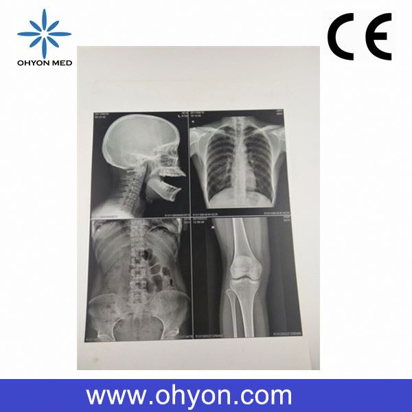 CE/ISO Hot sale 8*10 Inch Medical bone x ray film for hospital high quality