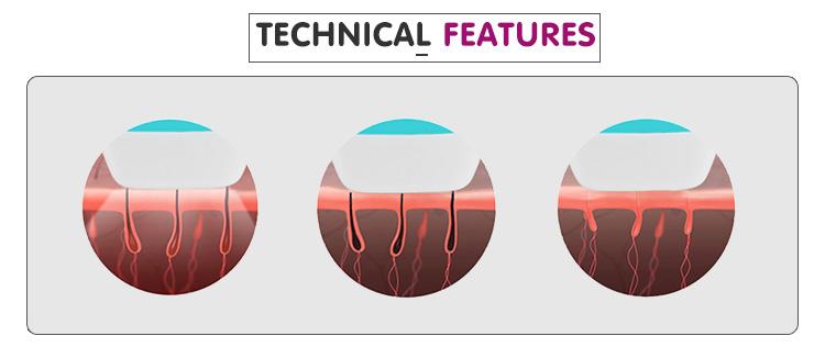 Laser de diodo eficiente resultados 755 808 1064 máquina de depilação
