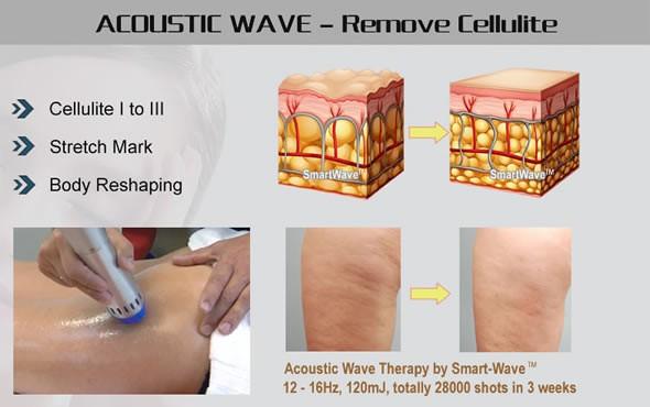 Mini Shockwave Equipment/mini Shockwave For Aesthetic/cellulite ...