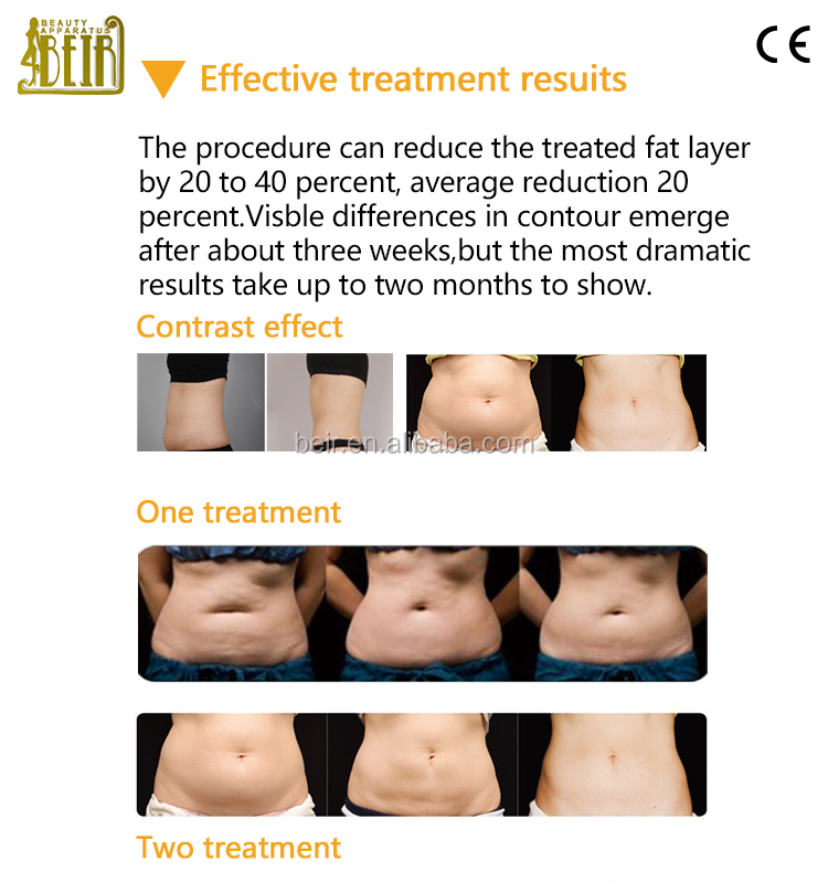 Hcg diet plan calgary image 4