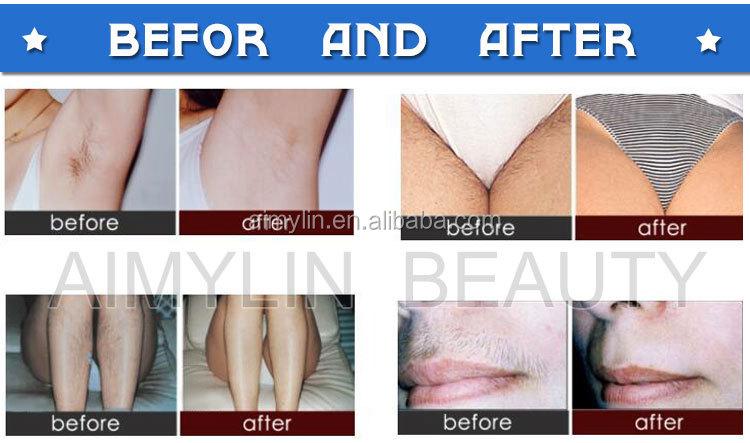 Body Fiber Laser Epilator Hair Removal Smooth Permanent Depilator