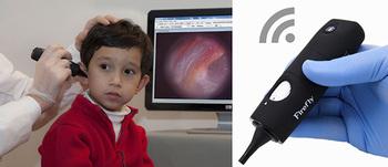 firefly otoscope